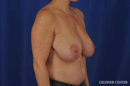 Breast Reduction Hinsdale, 4287 - Before Image 2