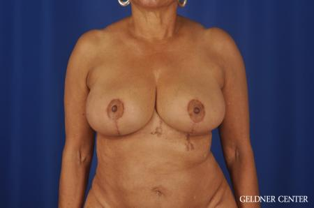 Breast Reduction Streeterville, Chicago 6650 -  After Image 1