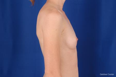 Chicago Breast Augmentation 2304 - Before Image 2