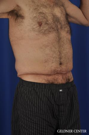 Liposuction For Men: Patient 11 - Before Image 2