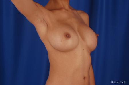 Chicago Breast Augmentation 2339 - Before and After Image 5