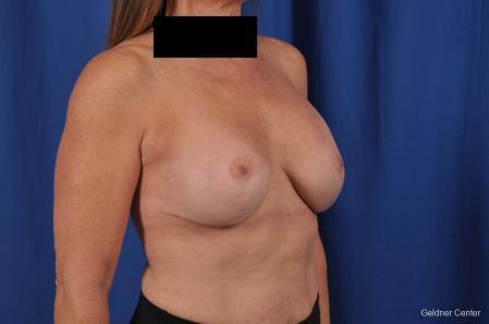 Complex Breast Augmentation: Patient 35 - After Image 3