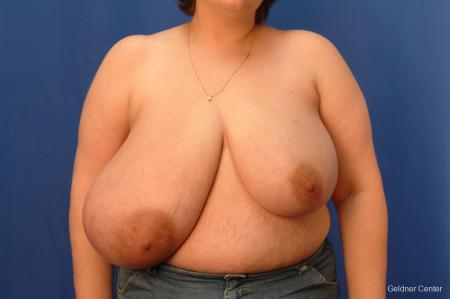 Breast Reduction Streeterville, Chicago 2522 - Before Image
