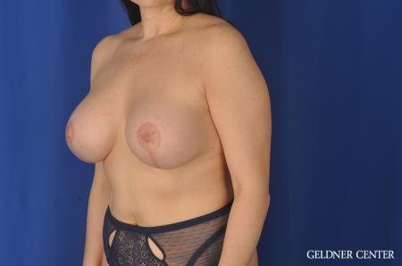 Chicago Breast Lift 11857 -  After Image 4