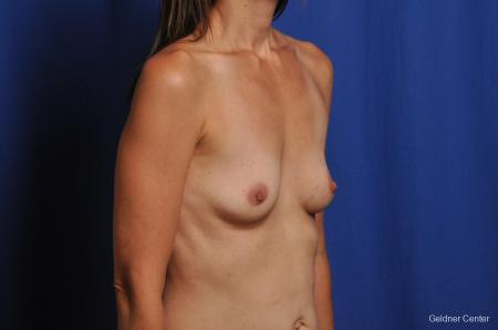 Chicago Breast Augmentation 2376 - Before Image 3