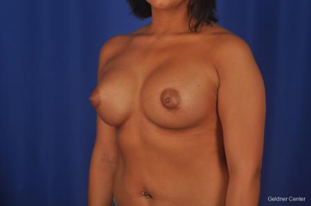 Breast Augmentation: Patient 156 - After Image 4