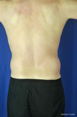 Liposuction For Men: Patient 9 - Before Image 4
