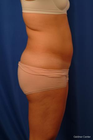 Liposuction: Patient 12 - Before Image 3