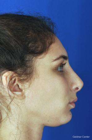 Rhinoplasty: Patient 4 - After Image 3