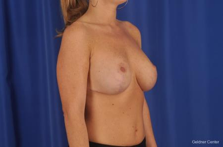 Complex Breast Augmentation Lake Shore Dr, Chicago 2290 -  After Image 2