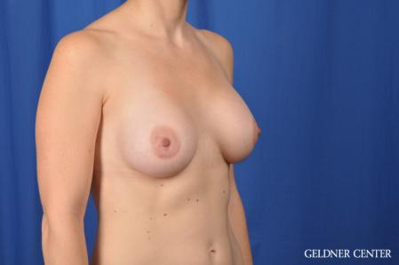 Breast Augmentation: Patient 170 - After Image 2