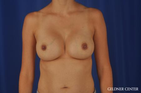 Chicago Breast Augmentation 8818 -  After Image 1