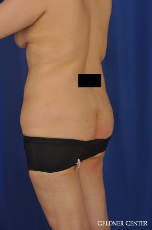 Lipoabdominoplasty: Patient 7 - Before and After Image 5