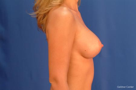 Breast Augmentation Streeterville, Chicago 2425 -  After Image 2