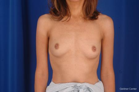 Breast Augmentation Lake Shore Dr, Chicago 2295 - Before Image 1