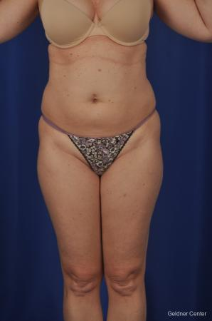 Vaser lipo patient 2069 before and after photos - Before Image