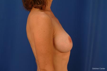 Chicago Complex Breast Augmentation 2445 -  After Image 2