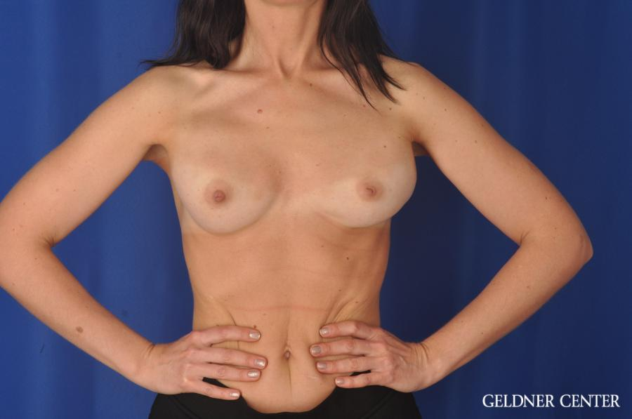 Complex Breast Augmentation: Patient 33 - Before and After Image 5