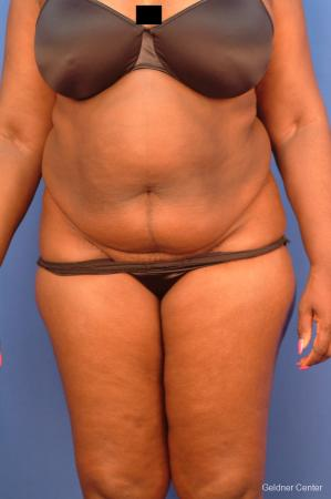 Vaser lipo patient 2540 before and after photos - Before Image