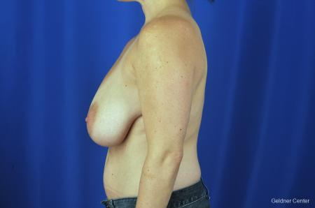 Breast Reduction Hinsdale, 4287 - Before and After Image 5
