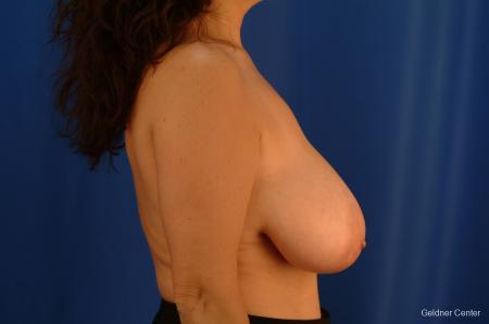 Breast Reduction Streeterville, Chicago 2289 - Before Image 2