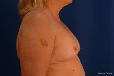 Complex Breast Augmentation Hinsdale, Chicago 2430 - Before Image 2
