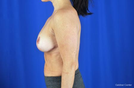Breast Reduction Hinsdale, 4287 -  After Image 5