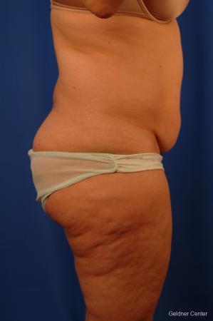 Lipoabdominoplasty: Patient 3 - Before Image 2