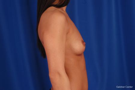 Breast Augmentation Lake Shore Dr, Chicago 2402 - Before Image 2
