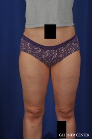 Liposuction: Patient 44 - After Image 1