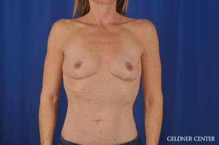 Chicago Complex Breast Augmentation 4005 - Before Image 1