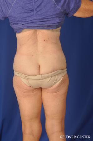 Liposuction: Patient 34 - After Image 4
