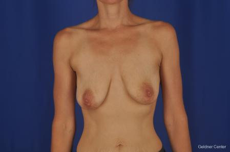 Breast Lift: Patient 45 - Before Image 1