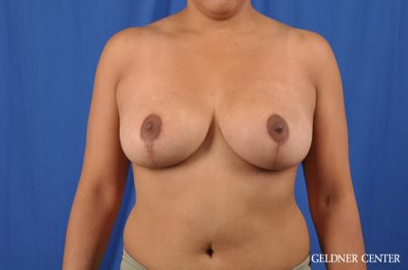 Breast Reduction: Patient 23 - After Image 1
