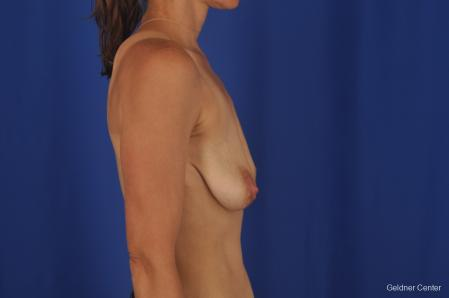 Breast Lift: Patient 45 - Before Image 3