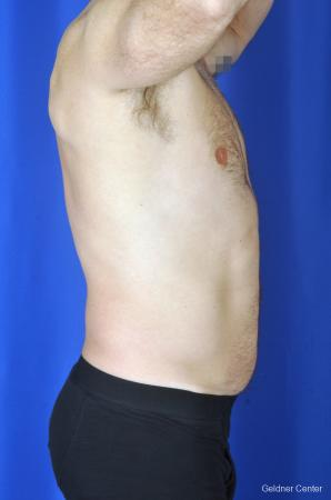 Liposuction For Men: Patient 7 - Before Image 3