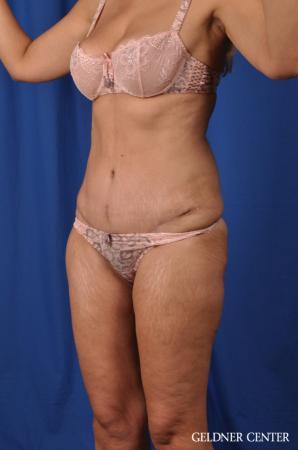 Lipoabdominoplasty: Patient 5 - After Image 4