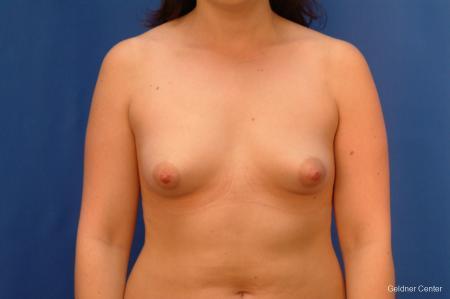 Chicago Breast Augmentation 2517 - Before Image 1