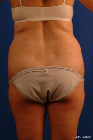 Liposuction: Patient 11 - Before and After Image 4