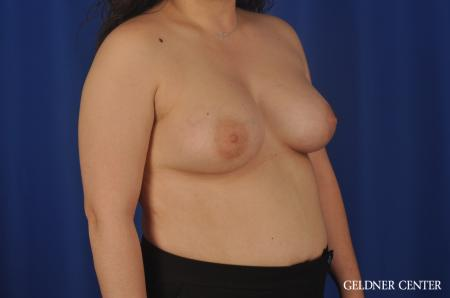 Breast Augmentation Hinsdale, Chicago 5466 -  After Image 2