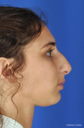 Rhinoplasty: Patient 4 - Before Image 3