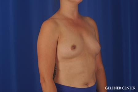 Breast Augmentation: Patient 180 - Before Image 2
