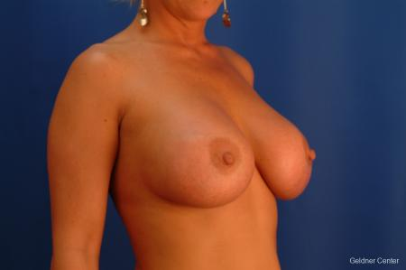 Breast Augmentation Hinsdale, Chicago 2427 -  After Image 3