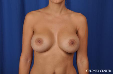 Breast Augmentation: Patient 134 - After Image 1