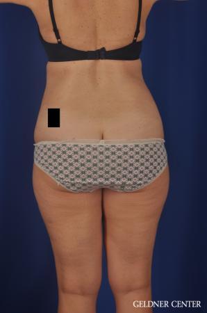 Liposuction: Patient 26 - After 4