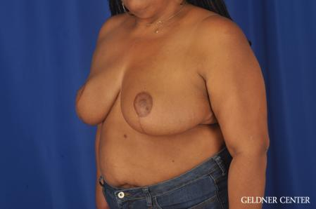 Breast Reduction: Patient 22 - After Image 4