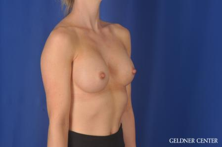 Breast Augmentation: Patient 187 - After Image 2