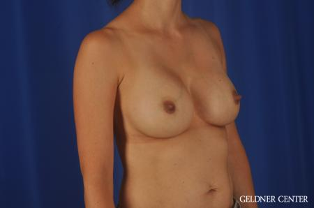 Chicago Breast Augmentation 8818 -  After Image 3