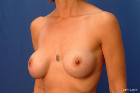 Chicago Breast Augmentation 2414 - Before and After Image 4