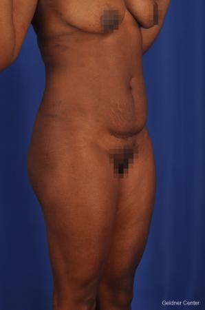 Liposuction: Patient 3 - Before Image 2